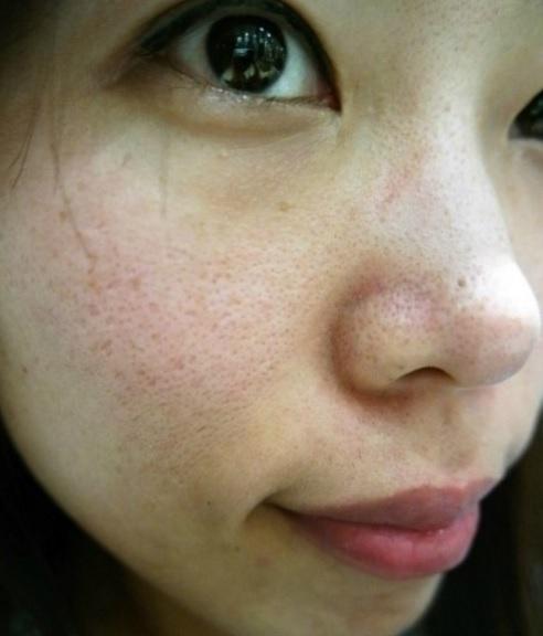 【口コミ】ファンケルモイストリファインは効果なし?お試しの毛穴ケア効果と成分を暴露